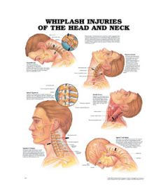 Whiplash Injuries (Head & Neck)