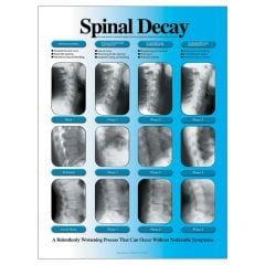 Spinal Decay Poster, Right, Laminated